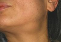 口腔外科 唾液腺の病気|ヤナセ...